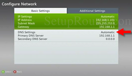 How to configure a static ip on a xbox 360 located on your local.